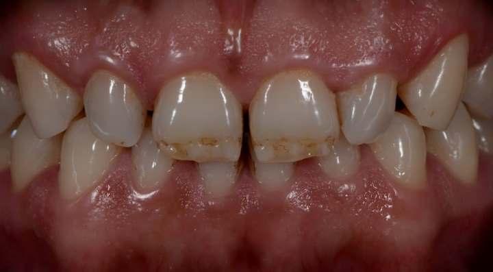 Художественная реставрация фронтальных зубов верхней челюсти