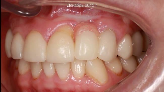Аугментация мягких и твёрдых тканей в переднем отделе верхней челюсти