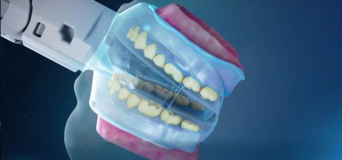 Первая автоматизированная система для отбеливания зубов
