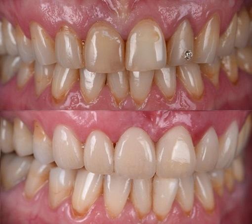 Прямая композитная реставрация верхних передних шести зубов