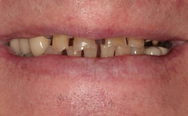 Тотальная реабилитация зубного ряда c применением имплантатов DENTIS с микрорезьбой