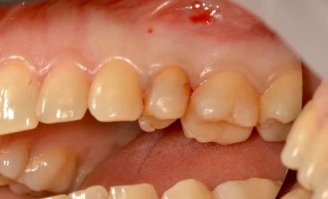 Одномоментная имплантация после недавно проведенного ортодонтического лечения
