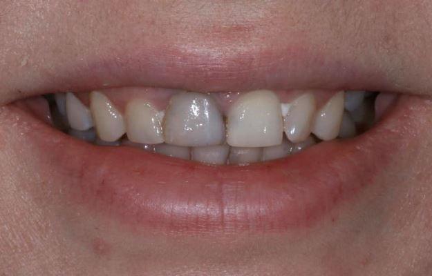 Быстрое и бюджетное лечение передних зубов