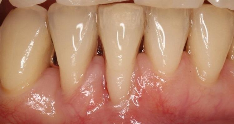 Тоннельная техника закрытия корня зуба: клинические случаи и выводы