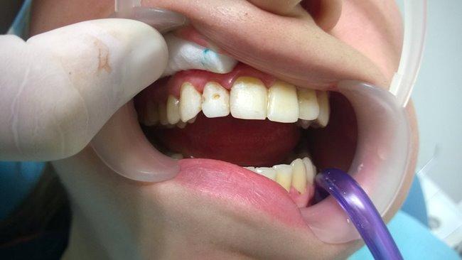 Восстановление 11, 12 витальных зубов