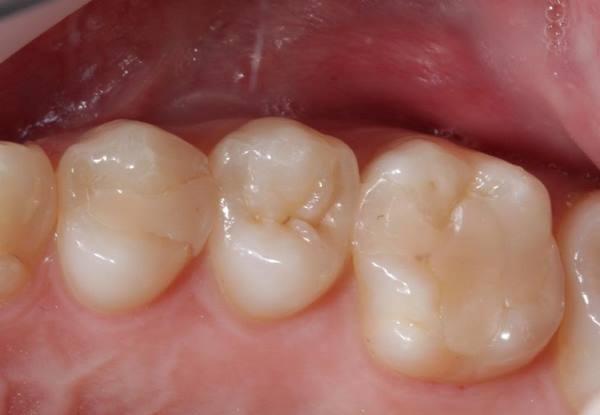 Прямая реставрация 2.4, 2.6 зубов