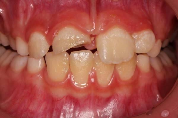 Первая помощь при переломе коронки интактного зуба