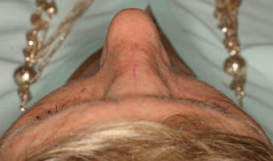 Внутрикостная кавернозная гемангиома носовой кости