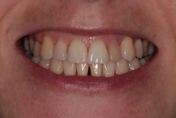 Устранение дисколорита 22 зуба