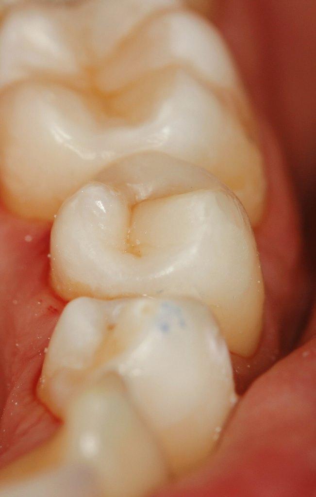 реставрация зуба композитным виниром