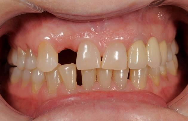 Временное решение в области латерального резца верхней челюсти
