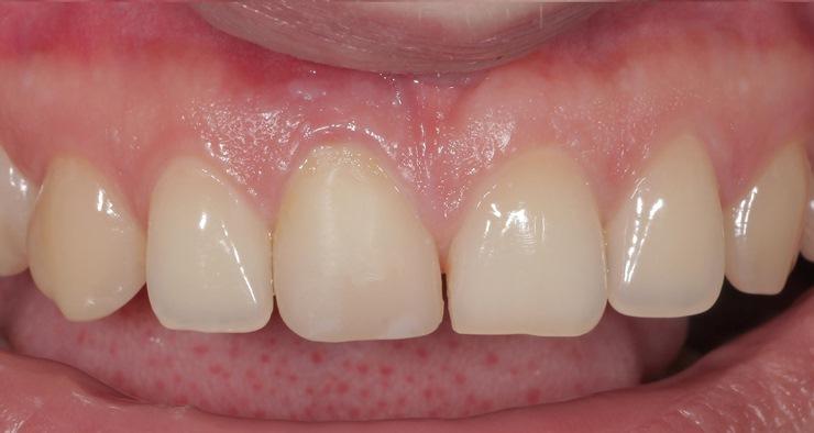 Эстетическая реабилитация центральных резцов верхней челюсти