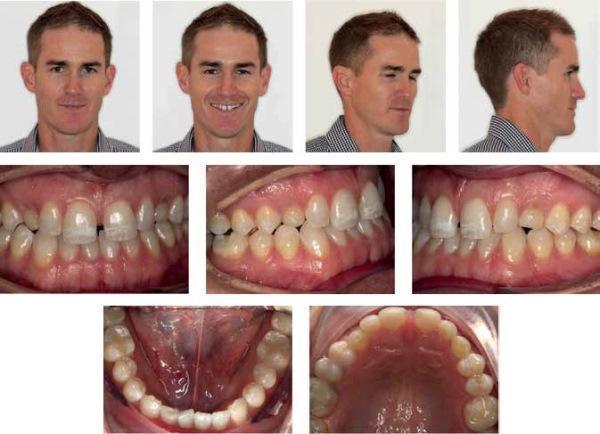 Возможности ортодонтии в случаях лечения взрослых пациентов