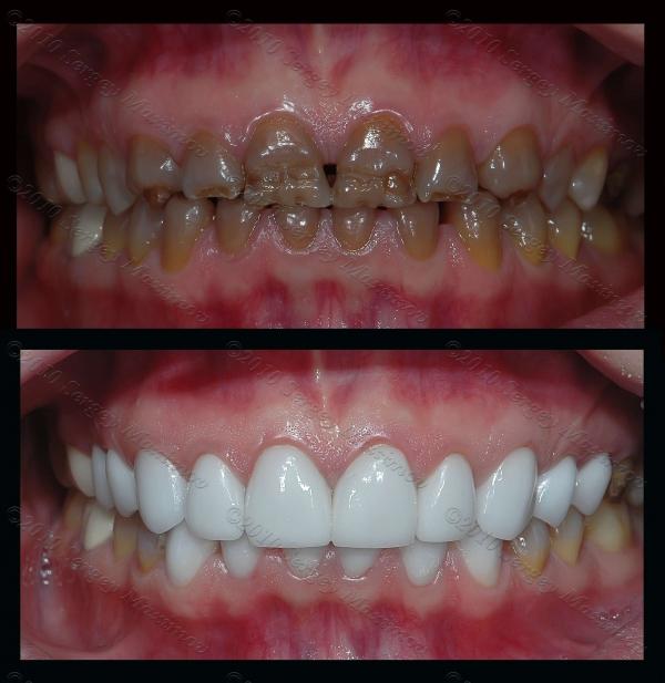 Нарастить зуб после снятия коронки