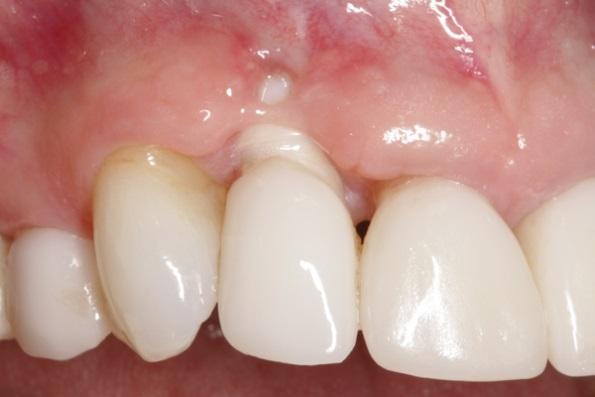 Профилактика потери зубного сосочка и развития рецессии в периимплантатной области
