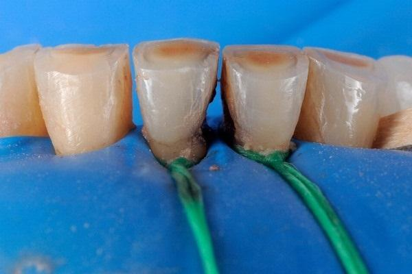 Эндодонтическая и реставрационная реабилитация зубов 3.1 и 4.1