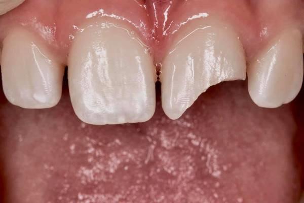 Восстановление утраченной части зуба с помощью своего осколка