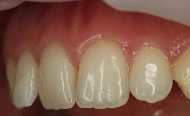 Реконструкция 12 зуба методом прямой реставрации