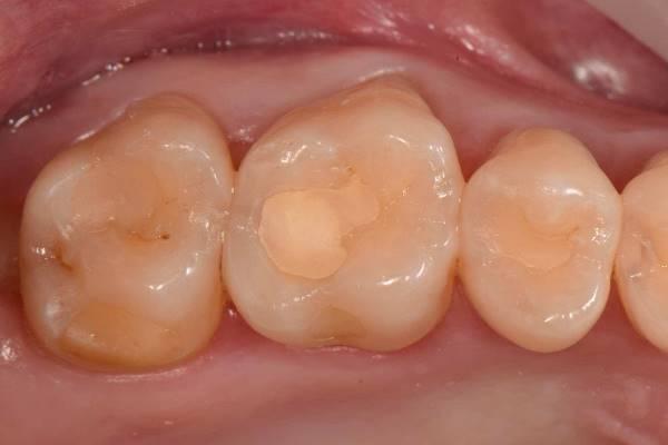 Реставрация жевательных зубов 2.5, 2.6 и 2.7