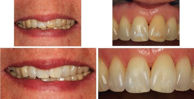 Минимально инвазивный подход к удалению белых и коричневых пятен на поверхности зубов