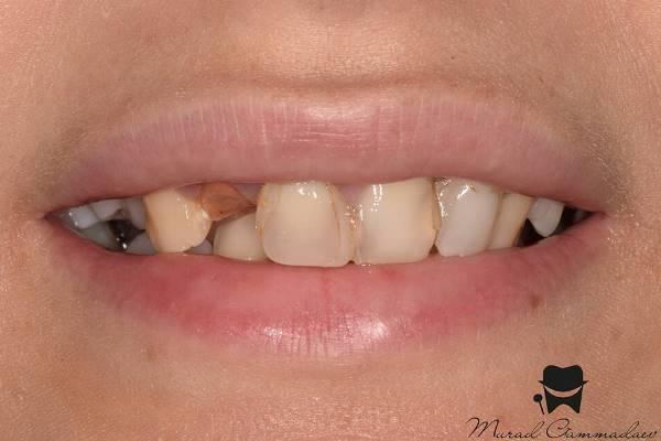Прямая композитная реставрация фронтальной группы зубов