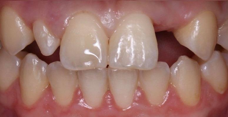 Цифровой протокол восстановления отсутствующего 22 зуба и шиповидного 12