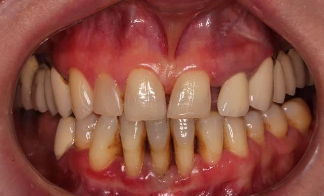 Шинирование зубов: подробный протокол, прогнозируемый результат