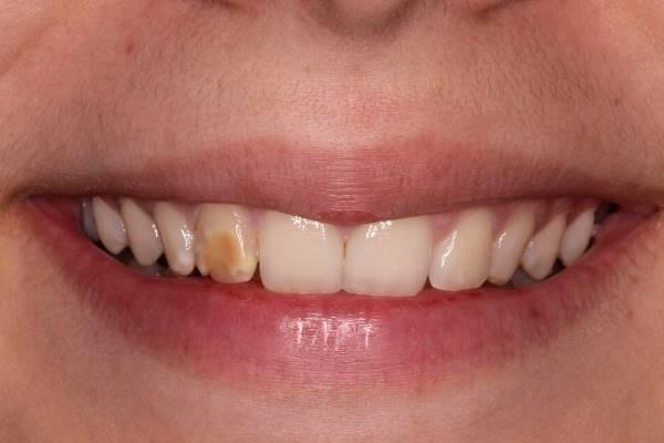 Прямая реставрация зубов при глубоких пятнах