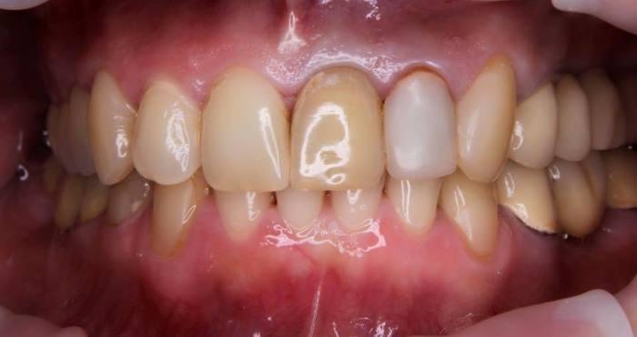 Несостоятельность 22 зуба по причине резорбции корня