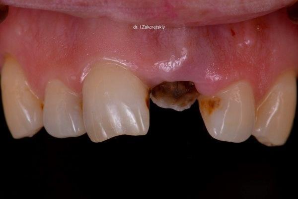 Турбоэкструзия как способ сохранения безнадежных зубов