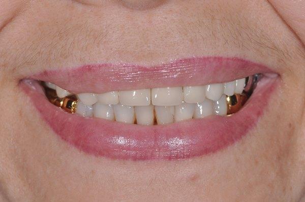 Комплексная реабилитация зубочелюстной системы (первый этап - на верхней челюсти)