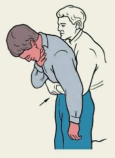 Дыхательная недостаточность, развившаяся вследствие аспирации спредера (уплотнителя гуттаперчи): клинический случай и практическое руководство