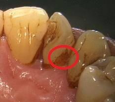 удаление мягкого пигментированного зубного налета
