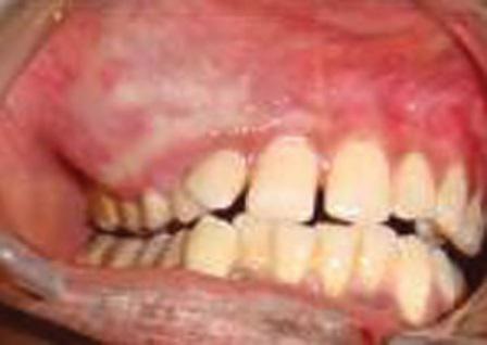 Гемангиоматозная амелобластома верхней челюсти