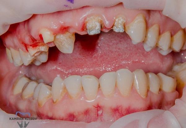 Замена несостоятельных зубов на имплантаты при помощи навигационной хирургии и ССТ