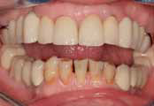 Прямая реставрация передних нижних зубов с использованием компониров