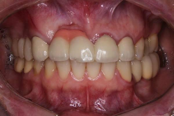 Восстановление дефекта альвеолярного гребня мягкотканной пластикой