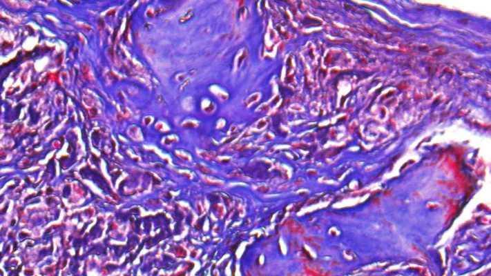 Разработали гидрогель для восстановления костной ткани