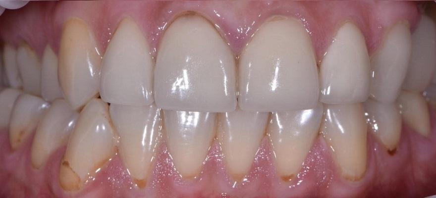 Восстановление мышечно-суставной функции путем реконструкции зубных рядов