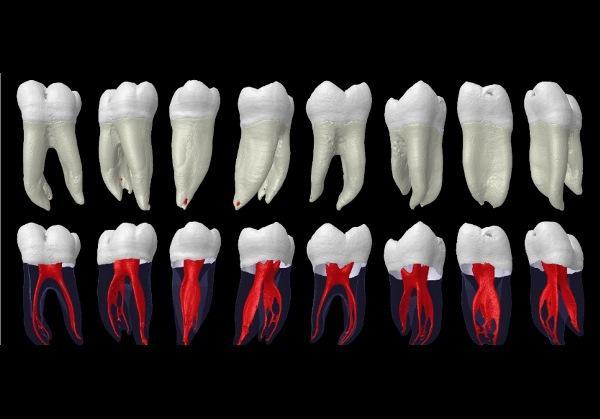 Ученые обнаружили, что анатомия корневых каналов зубов у жителей Индии отличается от зубов у жителей других стран
