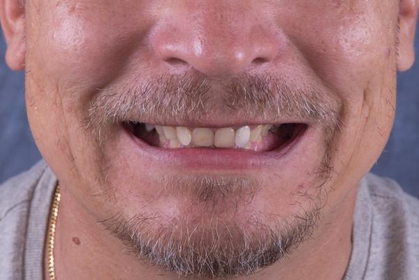 Полная эстетико-функциональная реабилитация полости рта