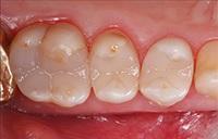 """Эффективная и экономичная постановка композитной пломбы: """"Fast Track"""" техника для восстановления боковых зубов"""