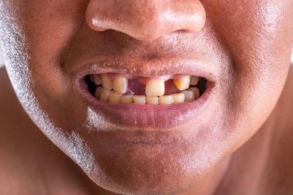 Новое исследование о связи метаболического синдрома и риска потери зубов