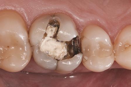 Bulk-fill композитные реставрации жевательных зубов