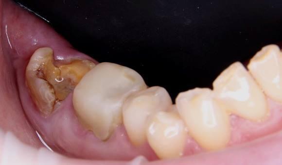 Удаление зуба с немедленной имплантацией и протезированием временной коронкой