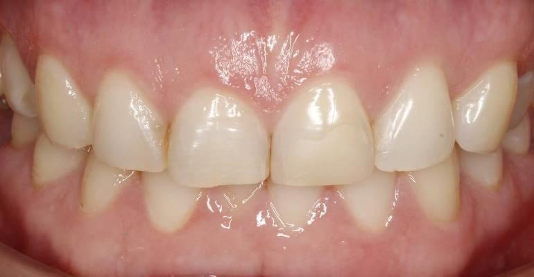 Реконструкция зубов верхней и нижней челюсти после ношения депрограммирующего сплинта и подготовка под протезирование на имплантатах