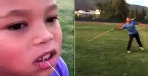 Удаление зуба при помощи копья