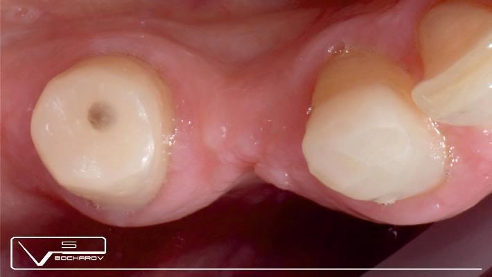Сочетанная работа на зубах и на имплантатах