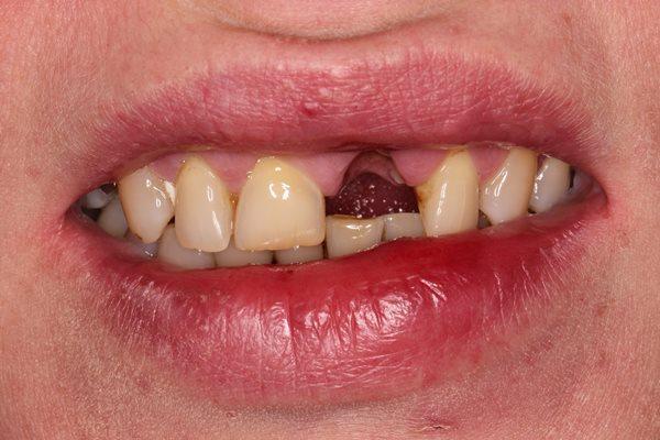 Экстренная помощь пациенту с травмой фронтального зуба