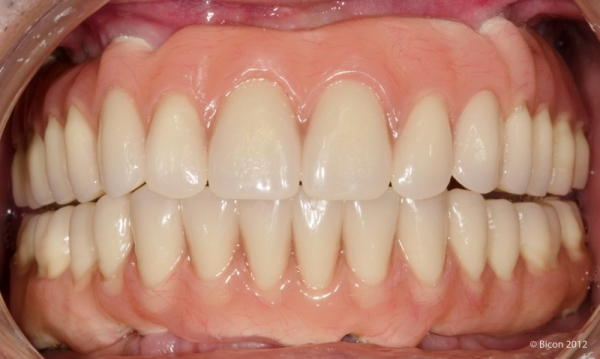 Фотография протеза TRINIA после окончательного цементирования, прямая проекция.